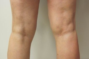 Manhattan liposuction after 4
